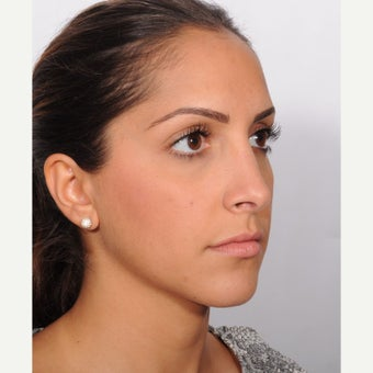 Rhinoplasty after 2607292