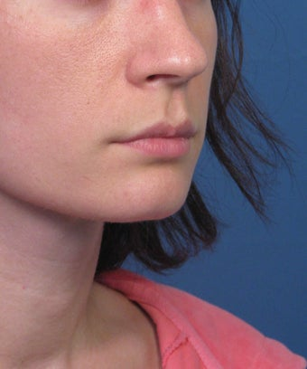 Subnasale Upper Lip Lift Shortening Procedure after 1155077
