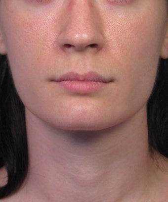 Subnasale Upper Lip Lift Shortening Procedure before 1155077