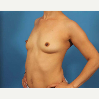 35-44 year old woman treated with Breast Implants before 3786983