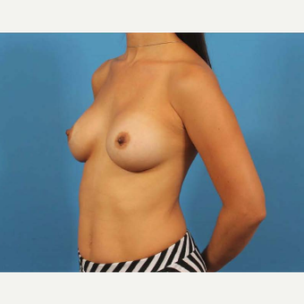35-44 year old woman treated with Breast Implants after 3786983