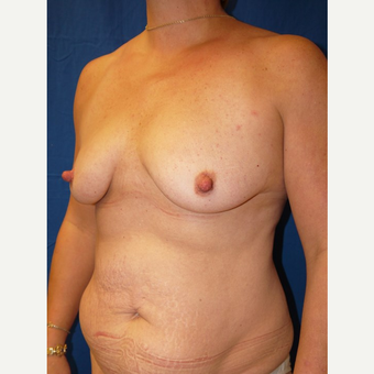 Breast Augmentation before 3744223