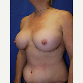 Breast Augmentation after 3744223