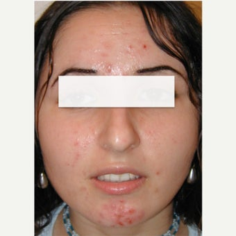 Blue Light Acne Phototherapy  (iClearXL, Curelight Medical).