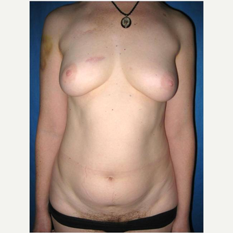 44 year old woman treated with DIEP flap Breast Reconstruction before 3725059