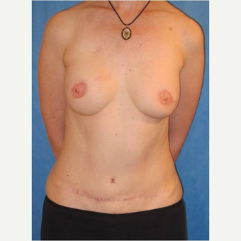 44 year old woman treated with DIEP flap Breast Reconstruction after 3725059