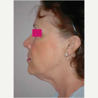 Neck Lift before 3058062