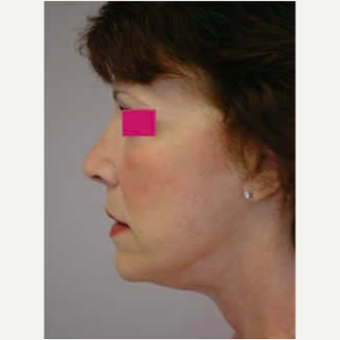Neck Lift after 3058062