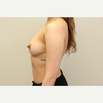 34 year old woman treated with Breast Augmentation before 3699796