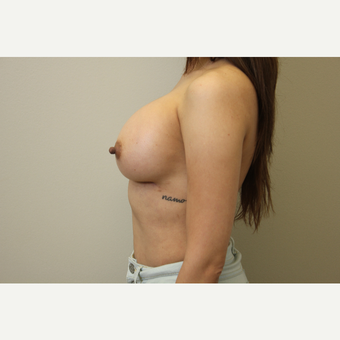 34 year old woman treated with Breast Augmentation after 3699796