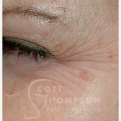 35-44 year old woman treated with Botox before 3456307