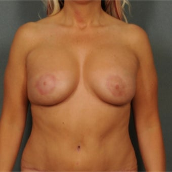 45-54 year old woman treated with Breast Implants after 1887404
