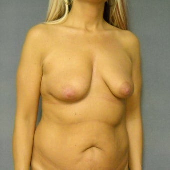 45-54 year old woman treated with Breast Implants 1887404