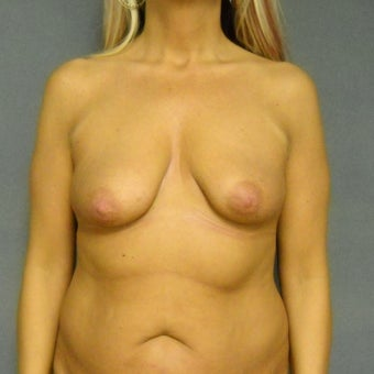 45-54 year old woman treated with Breast Implants before 1887404