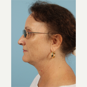 55-64 year old woman treated with Kybella after 3446473