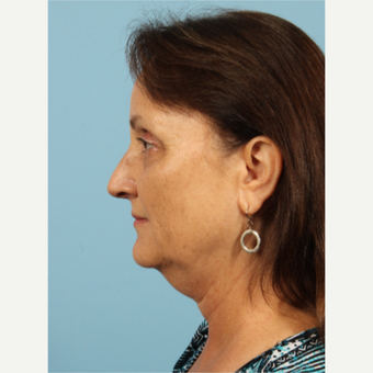 55-64 year old woman treated with Kybella before 3446473
