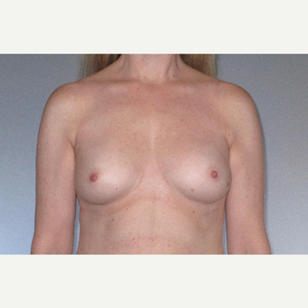 45-54 year old woman treated with Breast Augmentation before 3508536