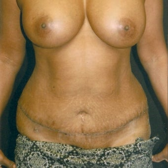 35-44 year old woman treated with Tummy Tuck after 2581846