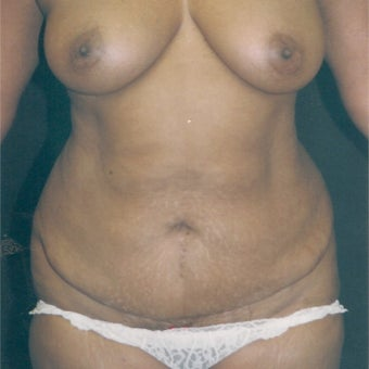 35-44 year old woman treated with Tummy Tuck before 2581846
