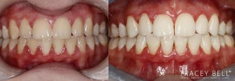 25-34 year old woman treated with Braces