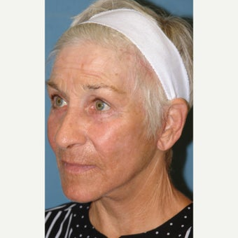 65-74 year old woman treated with Laser Resurfacing