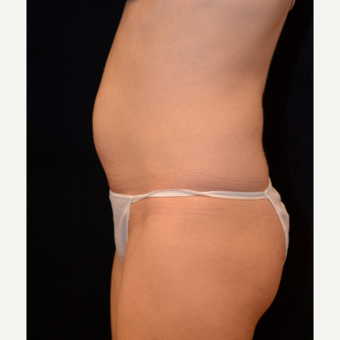 45-54 year old woman treated with Liposuction before 3000347