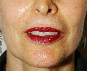 Laser Treatment of Lip Creases-Lip Wrinkles after 1174496