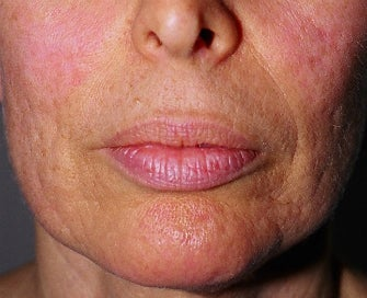 Laser Treatment of Lip Creases-Lip Wrinkles before 1174496