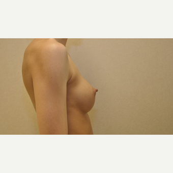 25-34 year old woman treated with Breast Augmentation after 3102917