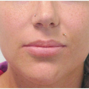 30 year old woman treated with Permanent Lip Implants before 2721620