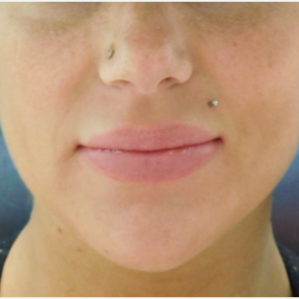 30 year old woman treated with Permanent Lip Implants after 2721620