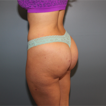 33  year old woman had Butt Augmentation to add volume and improve shape after 3467358