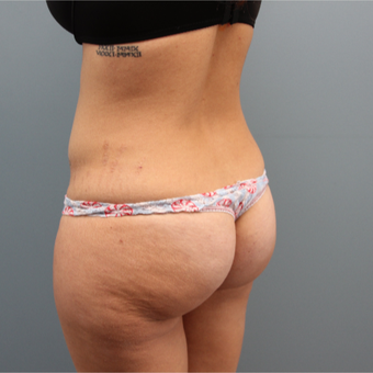 33  year old woman had Butt Augmentation to add volume and improve shape before 3467358