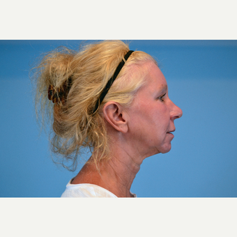 45-54 year old woman treated with Facelift before 3630259