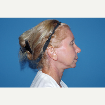 45-54 year old woman treated with Facelift after 3630259