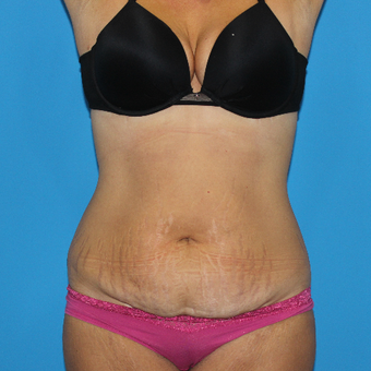 35-44 year old woman treated with Tummy Tuck before 3332922