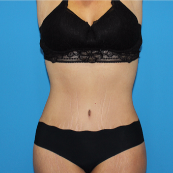 35-44 year old woman treated with Tummy Tuck after 3332922