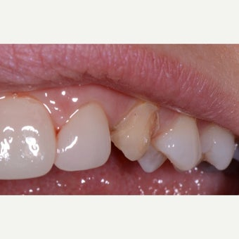 25-34 year old woman treated with Dental Bonding