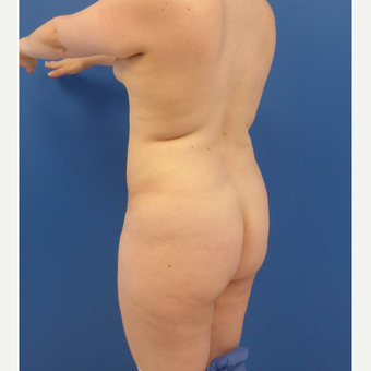 27 y/o female - 1500cc per side  Lipo abdomen, flanks, back with fat transfer to the buttocks before 3433769