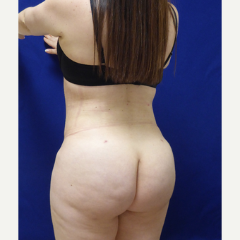 27 y/o female - 1500cc per side  Lipo abdomen, flanks, back with fat transfer to the buttocks after 3433769