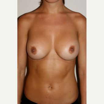 25-34 year old woman treated with Breast Augmentation after 3497539
