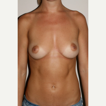 25-34 year old woman treated with Breast Augmentation before 3497539
