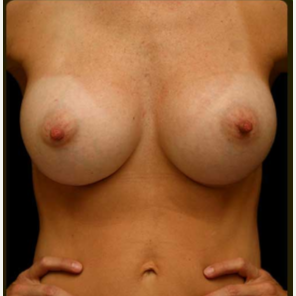 492cc  MP Gel  Breast Augmentation after 3241011