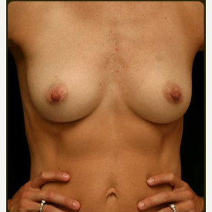 492cc  MP Gel  Breast Augmentation before 3241011
