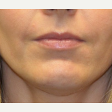 35-44 year old woman treated with Juvederm before 3502161