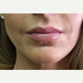 35-44 year old woman treated with Juvederm after 3502161