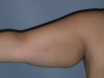 Arm Lift (Brachioplasty) on 34-year-old before 951929