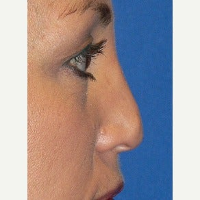 35-44 year old woman treated with Non Surgical Nose Job before 2356855