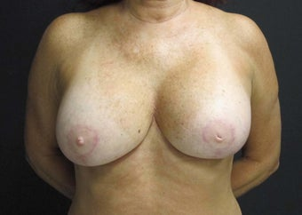 55-64 year old woman treated with Breast Implant Revision after 2988112