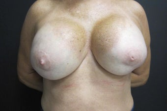 55-64 year old woman treated with Breast Implant Revision before 2988112